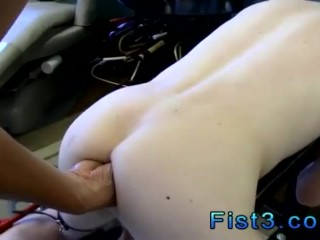 Gay smooth emo boys fist fucking snapchat First Time Saline Injection for